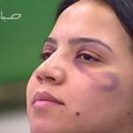 Marruecos: enseñan a las maltratadas a maquillarse los golpes